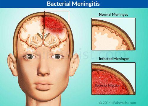 Pengobatan Alami Untuk Meningitis Viral saluran pernapasan