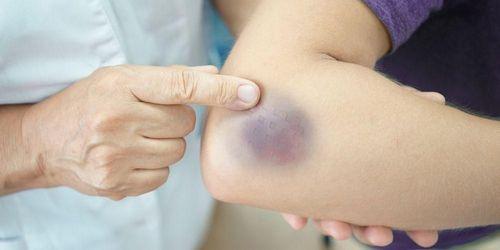 Pengobatan Rumahan untuk Mengobati Bursitis Hip Anda mungkin mengalami rasa sakit yang